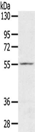 Western Blotting(WB) - SLC16A11 Antibody