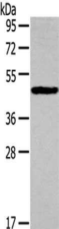 Western Blotting(WB) - IL3RA Antibody