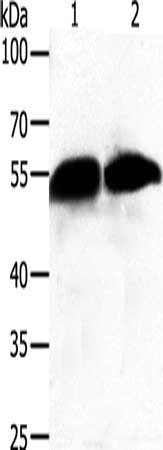 Western Blotting(WB) - GC Antibody
