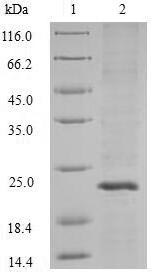 SDS-PAGE- Recombinant protein Streptococcus apt