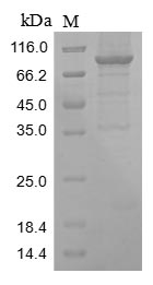 SDS-PAGE- Recombinant protein Human ENO1