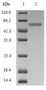 SDS-PAGE- Recombinant protein Human JCHAIN