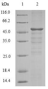 SDS-PAGE- Recombinant protein Mouse Setd4