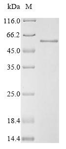 SDS-PAGE- Recombinant protein Human SMAD3