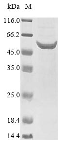 SDS-PAGE- Recombinant protein Streptococcus ply