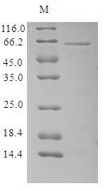 SDS-PAGE - Recombinant Human parvovirus B19 Capsid protein VP1