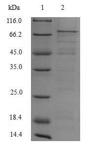 SDS-PAGE- Recombinant protein Hepatitis ORF2