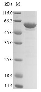 SDS-PAGE- Recombinant protein Mouse Dek