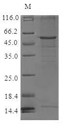 SDS-PAGE- Recombinant protein Human CCR6