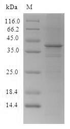 SDS-PAGE- Recombinant protein Human CTCF