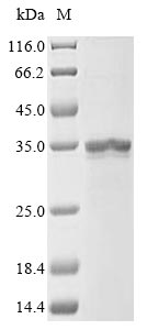SDS-PAGE- Recombinant protein Human DGAT1