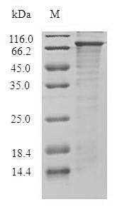 SDS-PAGE- Recombinant protein Human DGKE