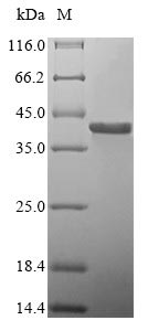 SDS-PAGE- Recombinant protein Human GP1BB