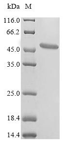 SDS-PAGE- Recombinant protein Lampetra MT-ND1