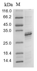 SDS-PAGE- Recombinant protein Human SLC5A2