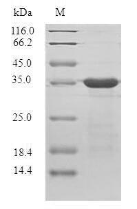 SDS-PAGE- Recombinant protein Plasmodium berghei PBANKA_093100