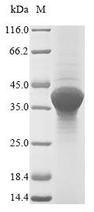SDS-PAGE- Recombinant protein Yersinia yopE