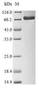 SDS-PAGE- Recombinant protein Borna G