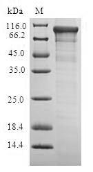 SDS-PAGE- Recombinant protein Escherichia cyaA