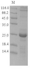 SDS-PAGE- Recombinant protein Lymphocytic GPC