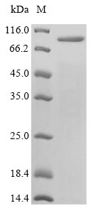 SDS-PAGE- Recombinant protein Varicella-zoster gE