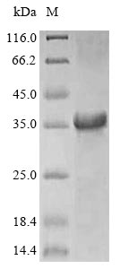 SDS-PAGE - Recombinant Hevea brasiliensis Major latex allergen Hev b 5