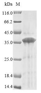 SDS-PAGE- Recombinant protein Human GPR157