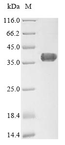 SDS-PAGE- Recombinant protein Human AGTRAP