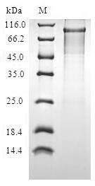 SDS-PAGE- Recombinant protein Human PIBF1