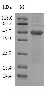 SDS-PAGE- Recombinant protein Human ADTRP