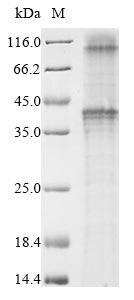 SDS-PAGE- Recombinant protein Macaca GNRHR2