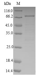 SDS-PAGE- Recombinant protein Human ABAT