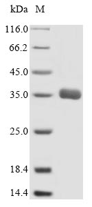 SDS-PAGE- Recombinant protein Human ABCC1