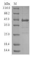 SDS-PAGE- Recombinant protein Human ACP1