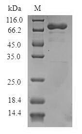 SDS-PAGE- Recombinant protein Human ADAP1