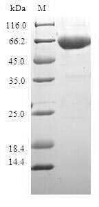 SDS-PAGE- Recombinant protein Human ADH1C