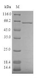 SDS-PAGE- Recombinant protein Human AKR7A3