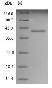 SDS-PAGE- Recombinant protein Human ALPP