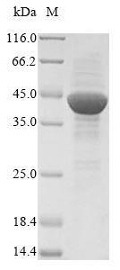 SDS-PAGE- Recombinant protein Pig ANPEP