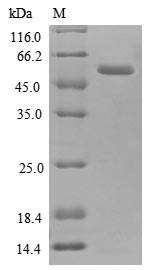 SDS-PAGE- Recombinant protein Human ANXA2