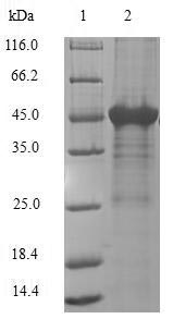 SDS-PAGE- Recombinant protein Human APRT