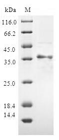 SDS-PAGE- Recombinant protein Human ATP5J