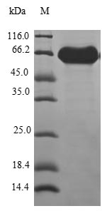 SDS-PAGE- Recombinant protein Human ATP6V0D1