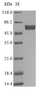 SDS-PAGE- Recombinant protein Human BGN