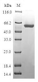SDS-PAGE- Recombinant protein Human BLVRA