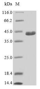 SDS-PAGE- Recombinant protein Human C21orf2