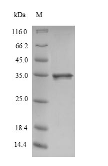 SDS-PAGE- Recombinant protein Rat Calm1