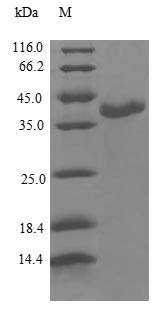 SDS-PAGE- Recombinant protein Human CALML3