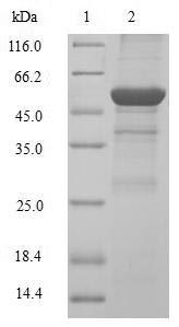 SDS-PAGE- Recombinant protein Human CCND2