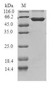 SDS-PAGE- Recombinant protein Human CCND3
